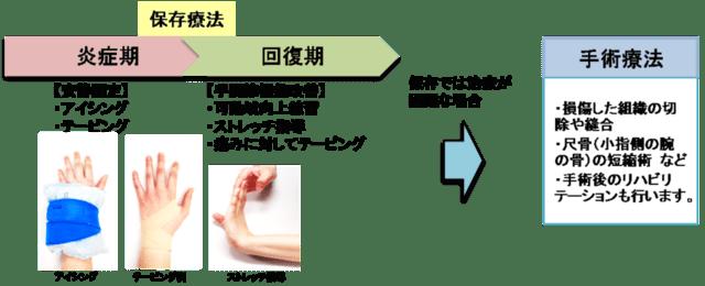 痛い と 手首 捻る